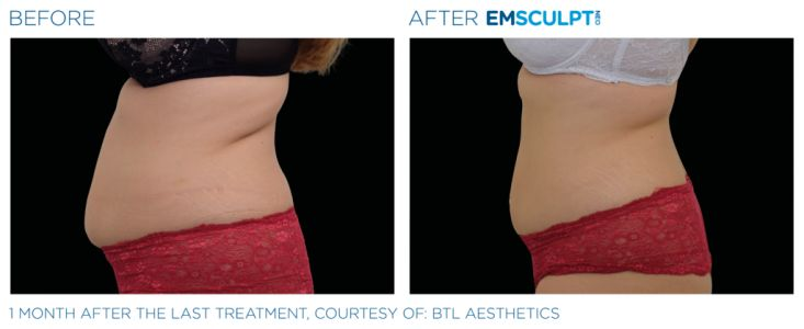 What Is Emsculpt NEO? Everything You Should Know About the New Body-Contouring Device