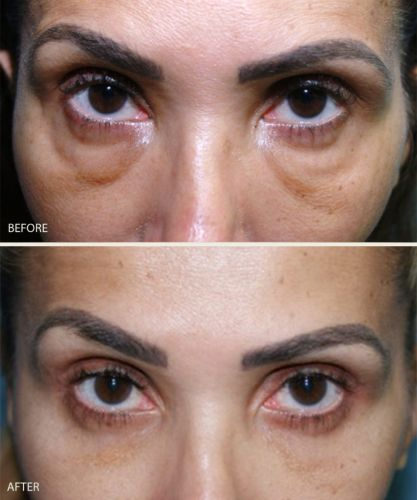 Are We Over-Filling the Under-Eye Area?