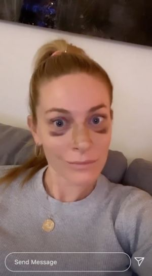 'Real Housewife' Leah McSweeny Gets Real About Her Recent Rhinoplasty on Instagram