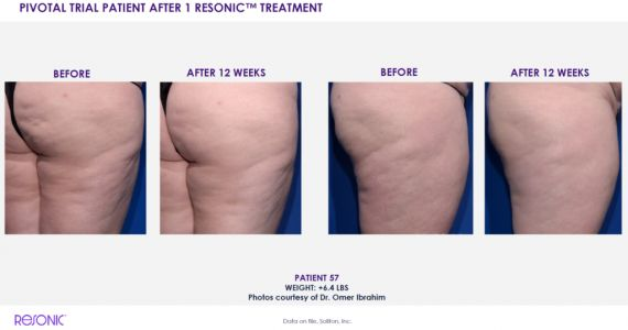 This New Noninvasive Treatment Gets Rid of Cellulite Using Sound Waves