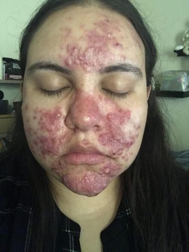 Behind the Before + After: How This Celeb Aesthetician Cleared Up Her Client's Cystic Acne